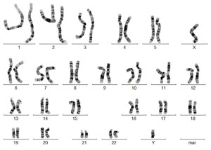 Male karyotype with a normal chromosomal examination 46,XY
